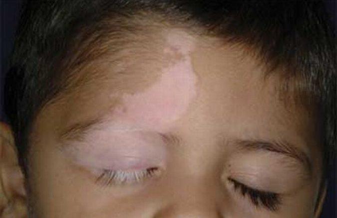 أعراض البهاق عند الأطفال