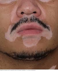 علاج البهاق في الوجه