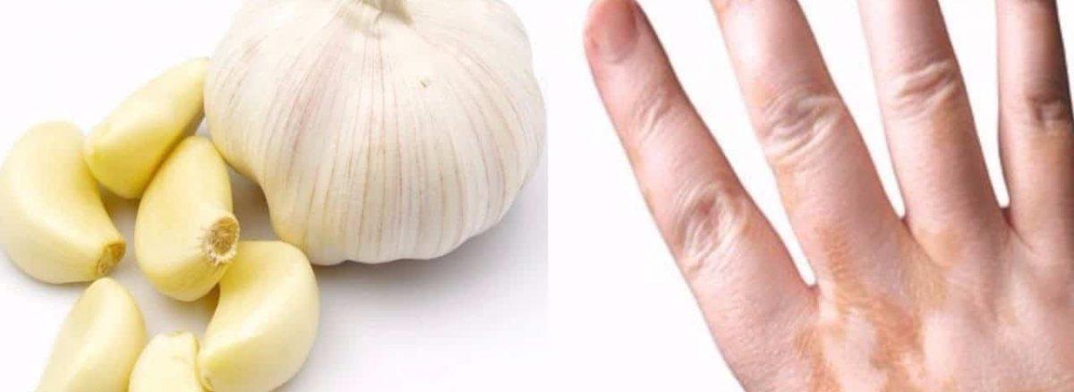 علاج البهاق بالثوم