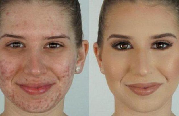 علاج الحبوب في الوجه واثارها