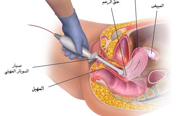 تضييق فتحة المهبل بعد الولادة